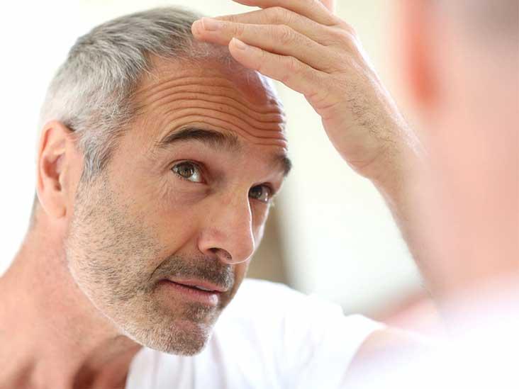 Can guys take Biotin for hair growth?