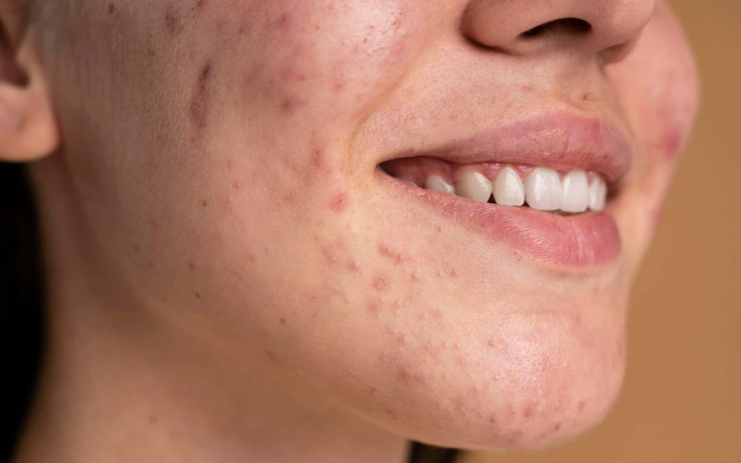 Best Acne Supplements: In-depth Guide to Help You Fight Acne